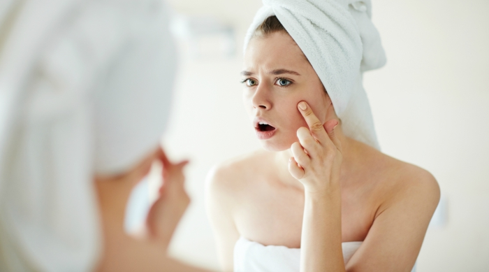 Girl looking at her acne in a mirror