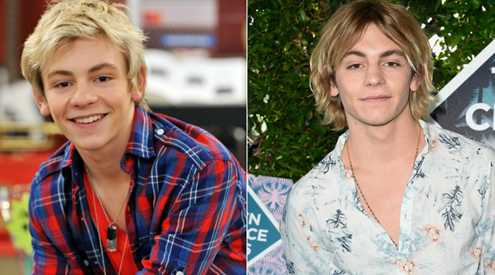 Ross Lynch before and after picture
