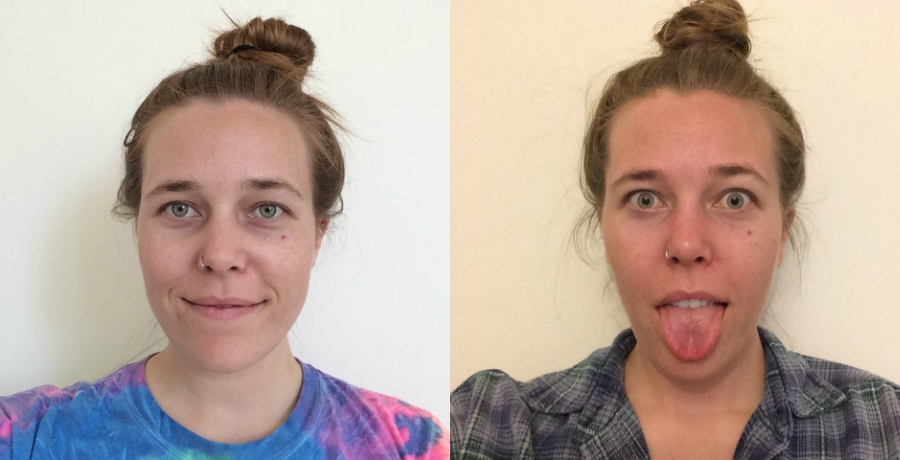 Before and after using Neutrogena's Light Therapy Acne Mask