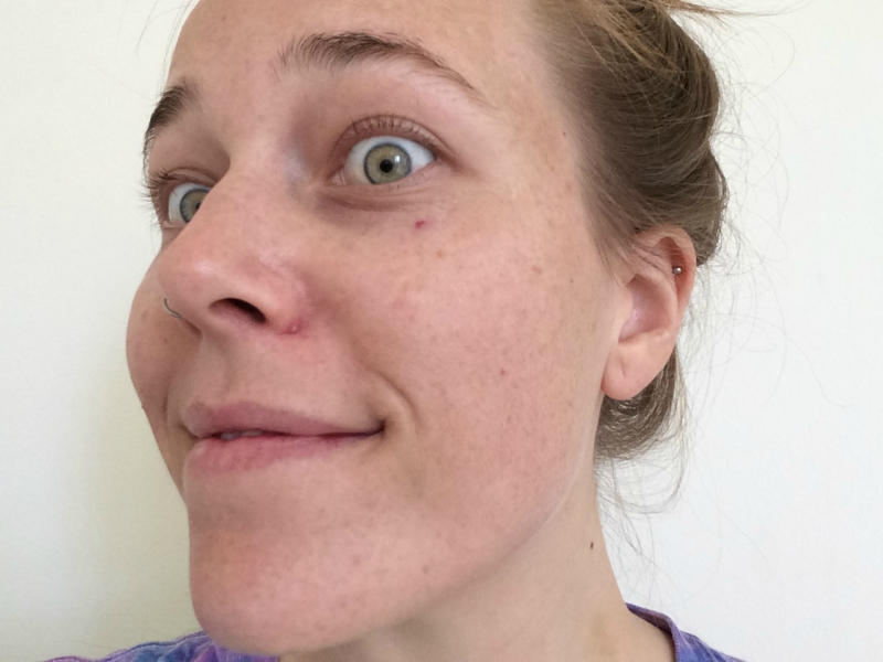 Pimple on girl's nose