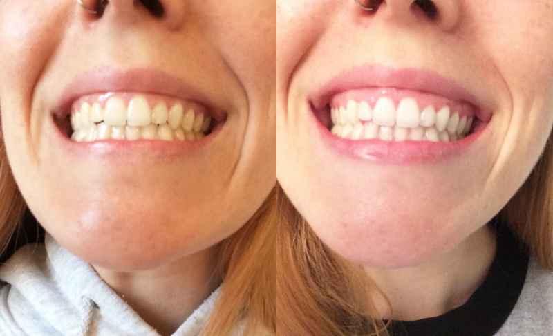 Side by side of before and after using Carbon Coco's Activated Charcoal Tooth Polish