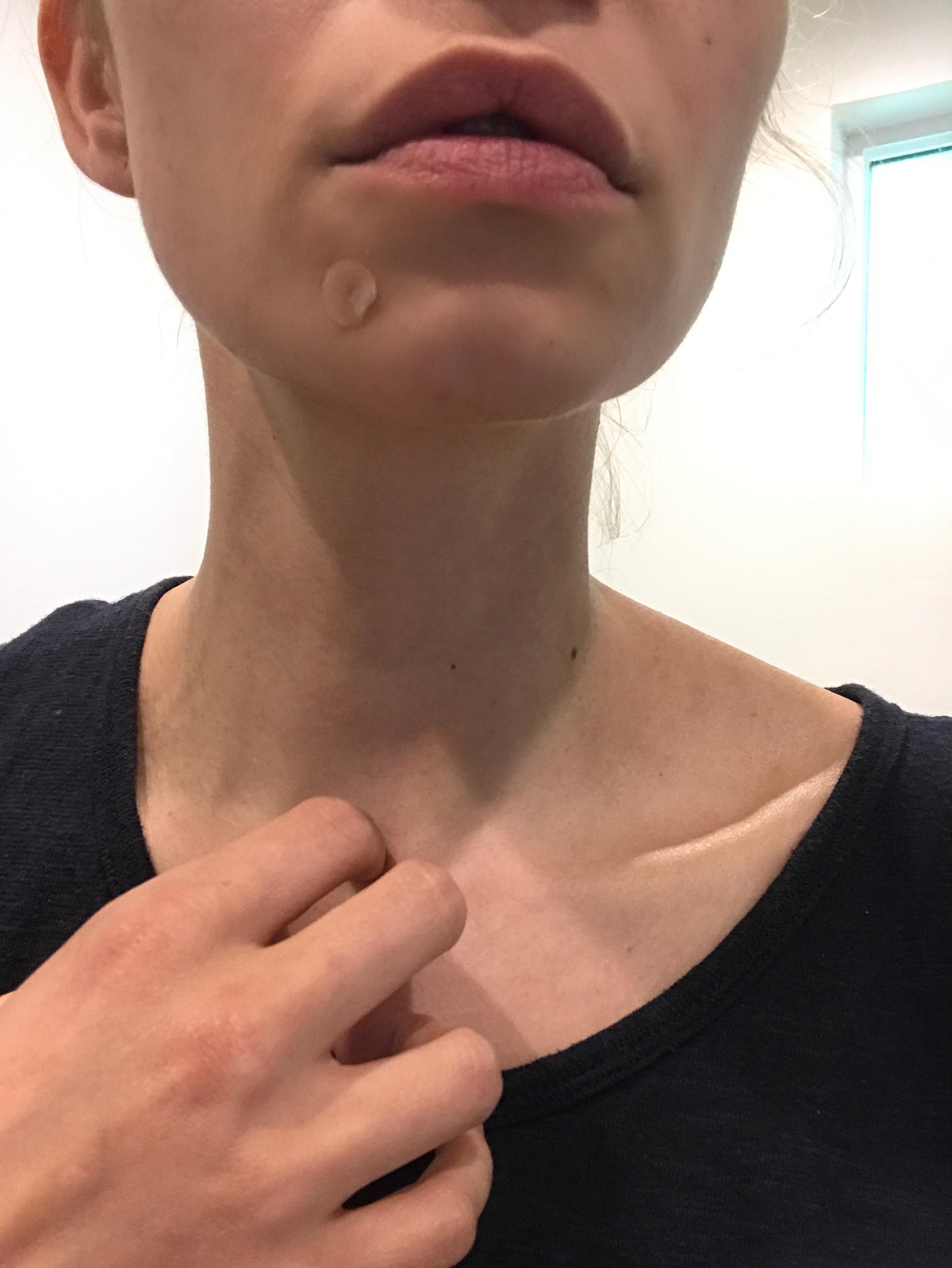 acne spot