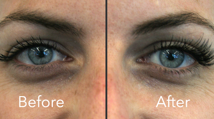 Before and After magnetic eyelash extensions