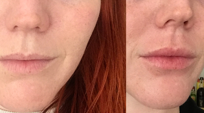 Juvalips before and after