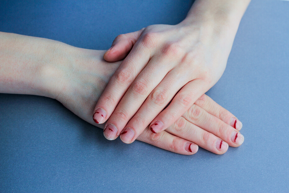 shutterstock-womans-hands-chipped-peeling-nails-021020