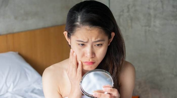 Shutterstock: Woman pouting over pimple acne in mirror feeling stressed