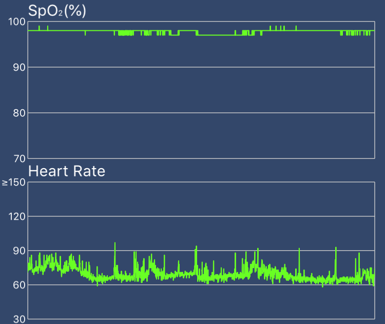 Wellue O2Ring O2 and heart rate graph