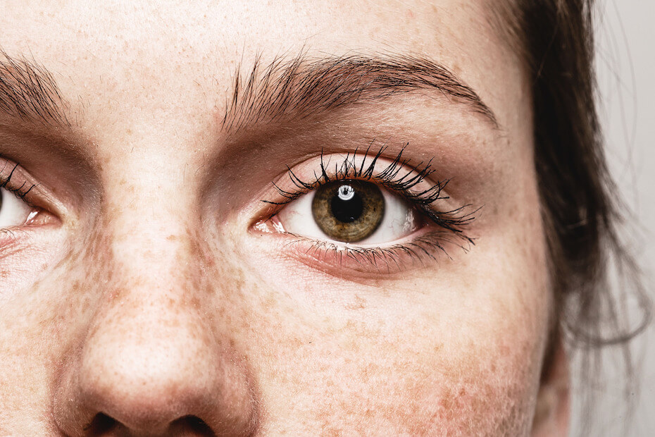 Shutterstock: Closeup on woman's eye with freckles