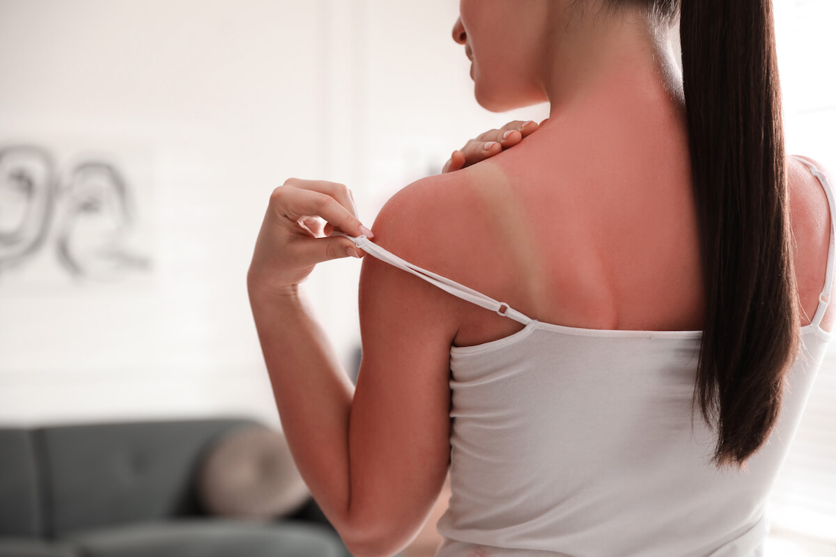 Shutterstock: Woman with irritating red sunburn and tan lines